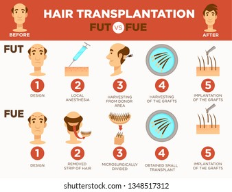 Bald man hair transplantation surgery cosmetic procedure vector design and local anesthesia harvesting from donor area or grafts implantation microsurgery and transplant male hairstyle fue or fut