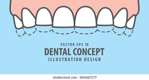 Banner Upper attrition (Bruxism) teeth illustration vector on blue background. Dental concept.