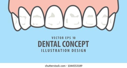 Banner Upper White spots on teeth illustration vector on blue background. Dental concept.