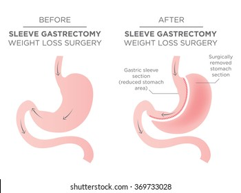 Bariatric Surgery - Sleeve Gastrectomy