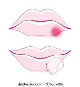 Beautiful girl's lips with cold sore bandage simple style outline vector illustration. Woman face part icon. Good for make-up cosmetic health care related design.