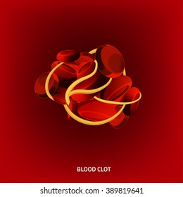 Beautiful vector illustration of a blood clot. Abstract medicine concept. Useful for poster, indographics, placard, leaflet, brochure, print, book and advertisement graphic design.