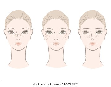 Beautiful woman with freckles, liver spots, large pores. Isolated on white. Cut out. Vector. For other variation, check my portfolio.