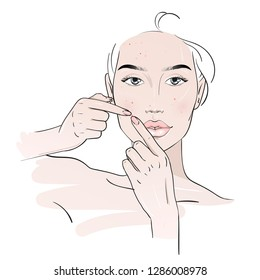 Beautiful young woman squeezing pimples. Removing pimple from her Fashion woman sketch.  Spa beauty concept. Vector illustration. Hand drawn fashion illustration.face. Woman skin care concept. Problem