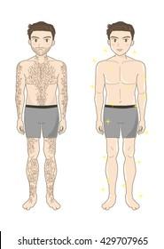 Beauty depilation (whole bodyA)
