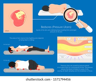 Bedsores (pressure ulcers) injuries skin underlying tissue from lying down or sitting prolonged period time with paralysis patient and immobility adults