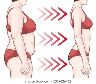 Before and after losing weight. Thick and slim woman in red underwear. Weight loss concept.
