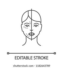 Before and after neurotoxin injection linear icon. Cosmetic procedure. Thin line illustration. Facial rejuvenation. Aesthetic medicine. Contour symbol. Vector isolated outline drawing. Editable stroke