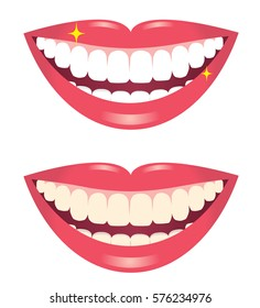 before and after whitening teeth isolated on white background/whitening teeth