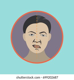 bell's palsy vector icon illustration
