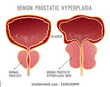Benign prostatic hyperplasia. Prostate disease infographic. Urology medical image with urinary bladder. Editable vector illustration in realistic style  isolated on white background.