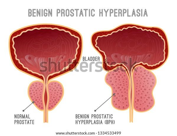 bph próstata benigna