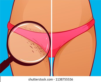 Bikini shaving, vector illustration