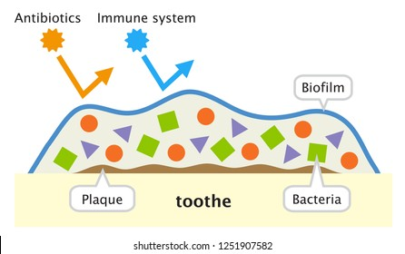 biofilm on tooth illustration. dental and oral care concept