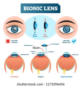 Bionic lens vector illustration. Labeled medical scheme with cataract. Isolated diagram with implant, clouded lens, cornea, incision and iris. Low and improved vision.