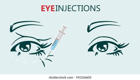biorevitalization with hyaluronic acid treatment of mimic wrinkles under the eyes reduces unwanted signs of aging including wrinkles around eyes and mouth young skin results.