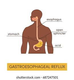 Black man with gastroesophageal reflux disease. Vector heartburn concept in simple flat style