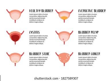 Bladder diseases. Cystitis, overactive bladder, stones, cancer, polyp. Urology. Vector flat illustration. Perfect for flyer, medical brochure, banner, landing page, website