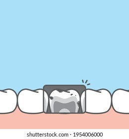 Blank banner lower x-ray unhealthy unhygienic decay teeth illustration vector design on blue background. Dental care concept.