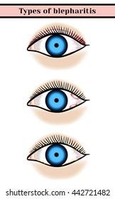 Blepharitis. Purulent, inflammatory eyes disease.