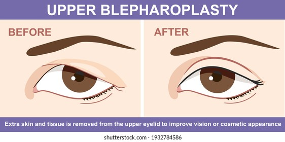 Blepharoplasty of eyelid , before and after. Vector illustration with double eyelid surgery. Infographics with icons of plastic surgery procedures.