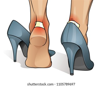 Blister and wound on woman heel