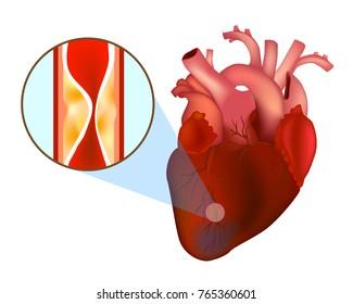 Blocked Arteries. Heart Attack. Myocardial infarction.