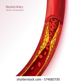 Blocked blood vessel - artery with cholesterol buildup realistic vector illustration isolated background