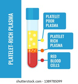 Blood after separation of platelets in the centrifuge. PRP infographics with a test tube. Platelet-rich plasma laboratory equipment. Regenerative medicine concept. Vector illustration.