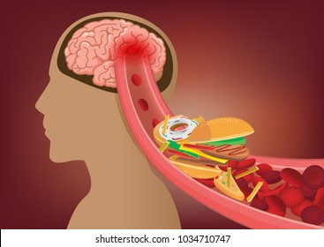Blood can't flow into human brain becaue fast food made clogged arteries. Illustration about stoke disease and medical concept.