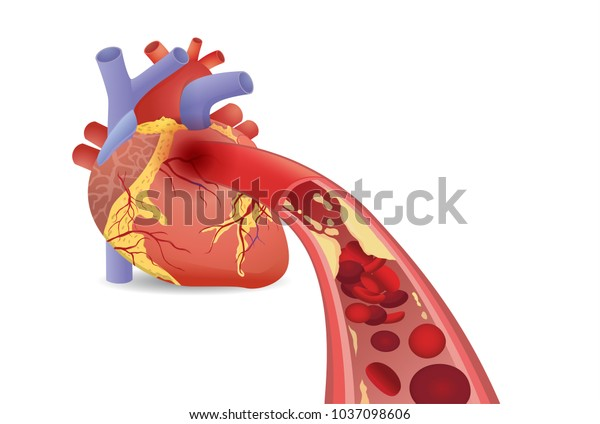 Blood can't flow into human heart becaue clogged arteries by fat. Illustration about heart attack disease and medical concept.