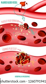Blood clot formation. Hemophlia infographic facts. Vector illustration in bright colors isolated on white background. Medical, healthcare and scientific concept with useful data. Vertical poster.