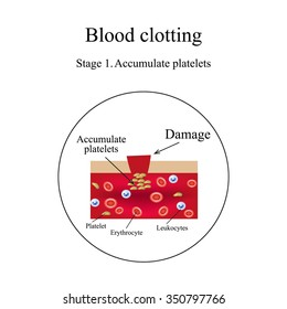 Blood clotting. Stage 1. Infographics. Vector illustration.