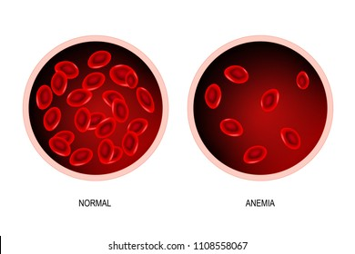 blood of healthy human and blood vessel with anemia. Anemia is a decrease in the total amount of red blood cells or hemoglobin in the blood. Vector illustration.