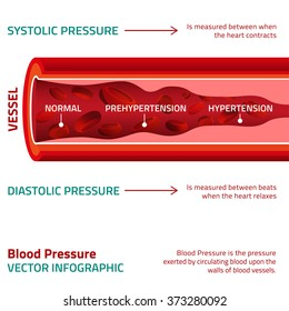 Blood Pressure Infographic