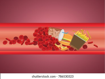 Blood vessel is blocked by hamburger and fast food. Concept illustration about danger of Cholesterol and fat.