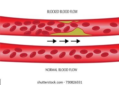 blood vessel vector