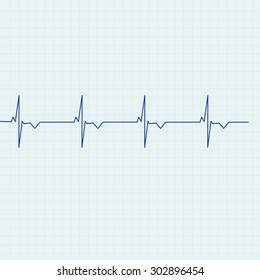 Blue ekg line on graph paper background, heart monitor,heart rhythm vector