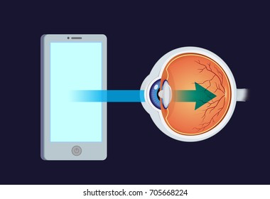 Blue light from smartphone into eye. Illustration about digital device screens danger effect to retina.