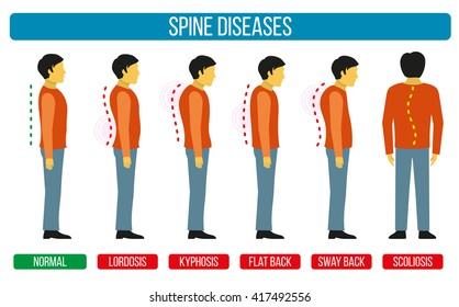 Body posture defect. Infographics of spine diseases. Scoliosis and lordosis medical diagrams. Backbone, diagnostic symptom. Vector illustration