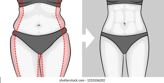 The body of a woman before and after losing weight. Press and hips. Red outline showing excess weight.