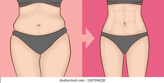 The body of a woman before and after weight loss in underwear. Press and hips.