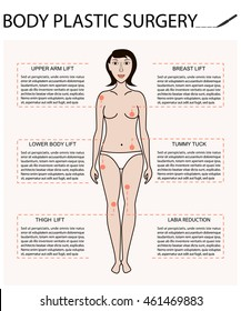 Body woman correction, cellulite fat, plastic surgery Breast and thighs lift, implants, liposuction, tummy tuck, arm lift, diastasis surgery, labia reduction Vector infographic for posters, brochures