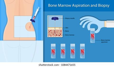 Bone biopsy medical
