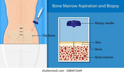 Bone biopsy medical marrow harvest stem cell transplants aspiration specimen cancer procedure sample test treatment diagnosis anemia blood cell