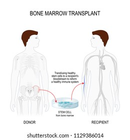 bone marrow transplant. men silhouettes (recipient and donor) with highlighted of the skeleton and blood vessel. Transfusing healthy stem cells from donor to a recipient's blood stream