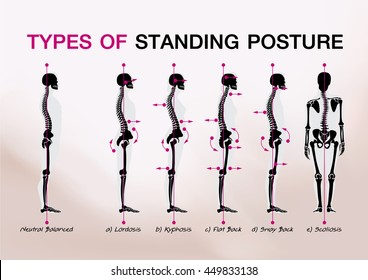 bone standing posture all
