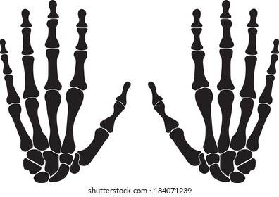Bones of both hands illustrated on white background