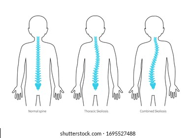 Boy scoliosis flat vector illustration. Types of scoliosis of spine infographics. Diagram with spine curvatures and healthy backbone. Body posture defect. Medical, educational and science banner