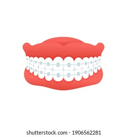 Braces for correction  jaw and teeth, isolated on white background. Concept dental medecine. Cartoon flat design. Vector illustration.